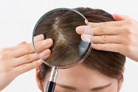 Łupież a farbowanie włosów